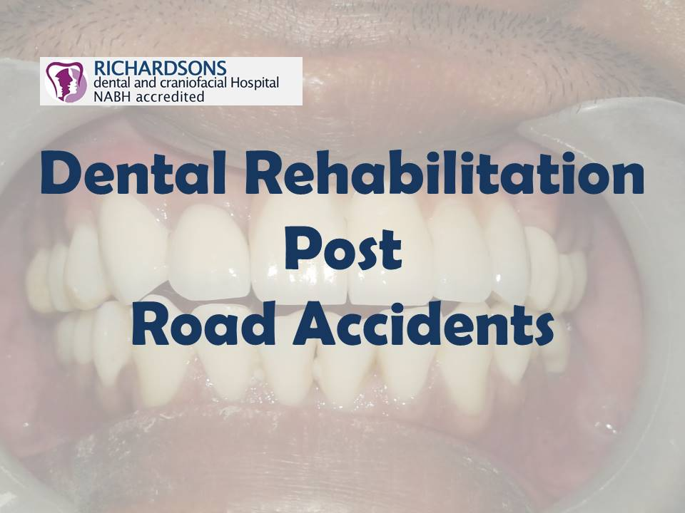 Dental Rehabilitation treatment in India