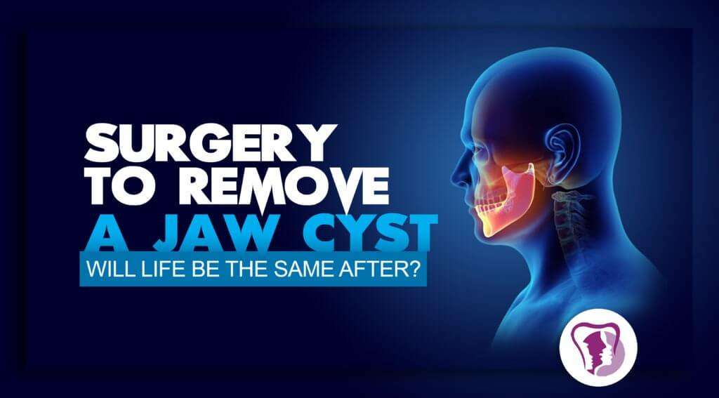 Dental cysts removal surgery