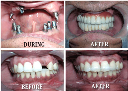 Dental implant Surgery in India