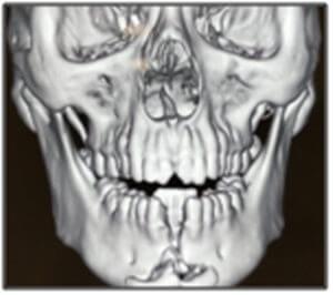 maxillofacial surgeon in nagercoil
