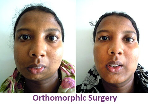 Facial Asymmetric Surgery