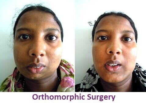 Facial Asymmetric Surgery in Nagercoil