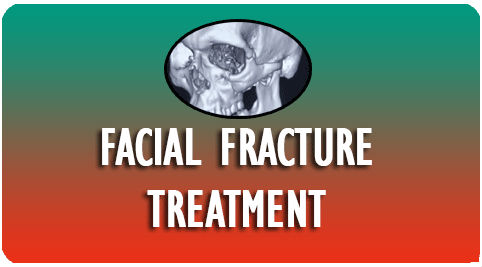 Facial Fracture Treatment in India