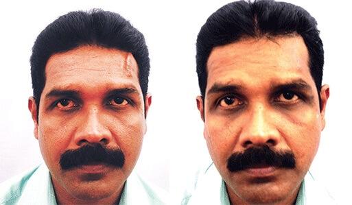 Facial Scar Removal Surgery