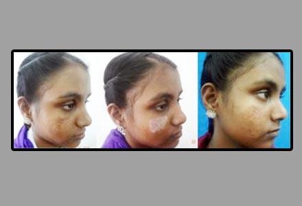 Facial Scar Revision Surgery in India