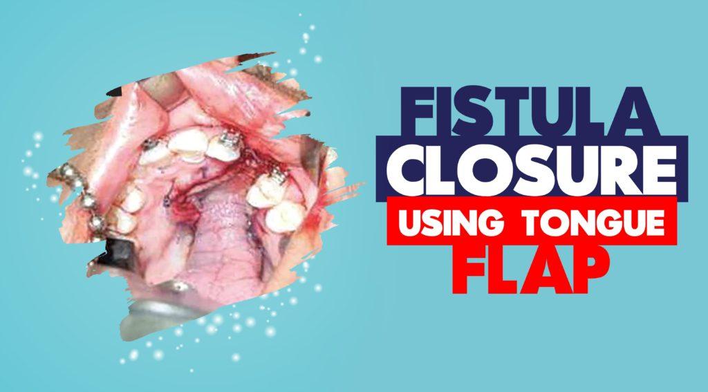 Fistula Closure Treatment in India
