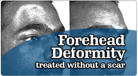 Forehead Deformity Treatment in India