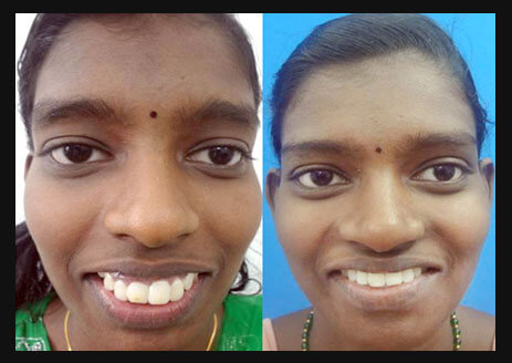 Gummy Smile After and Before Treatment