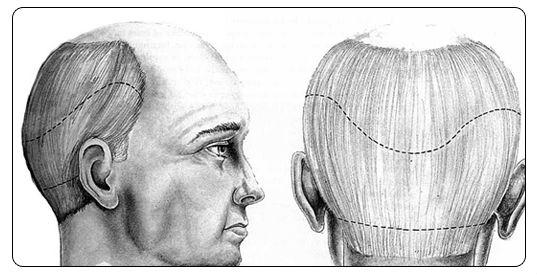 Hair Loss Treatment in Tamil Nadu