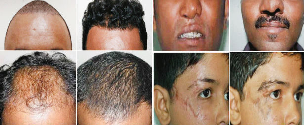 Hair Transplant Treatment in Nagercoil