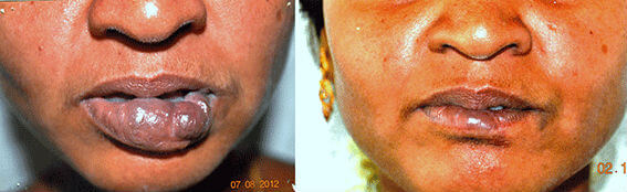 Hemangioma Treatment in Nagercoil