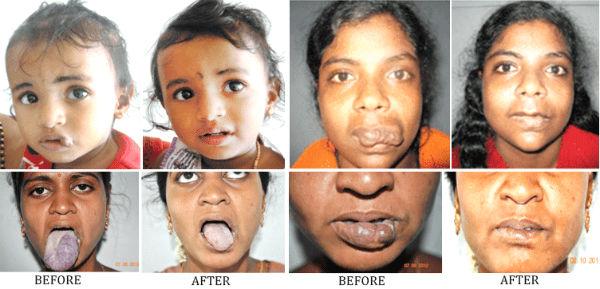 Hemangioma-treatment