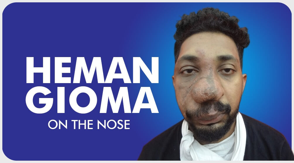 Hemangiomaon the nose