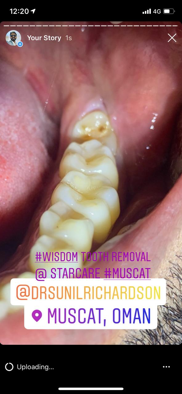 Instagram Reviews Wisdom Teeth Removal