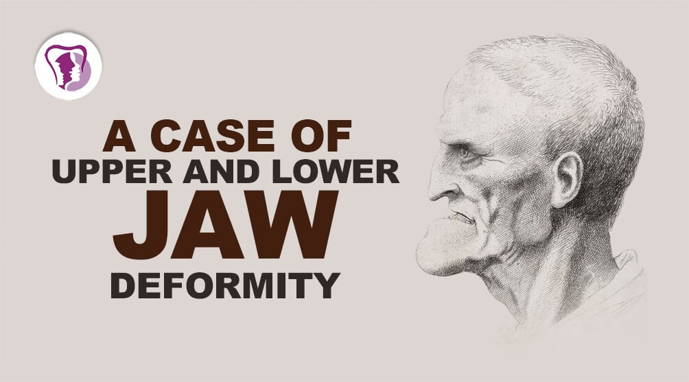 Jaw Deformity Treatment in India