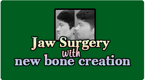Jaw Surgery with new bone creation