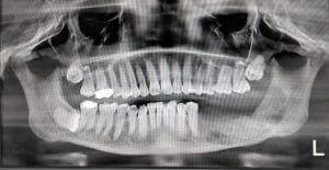 Jaw cyst removal in Tamil Nadu