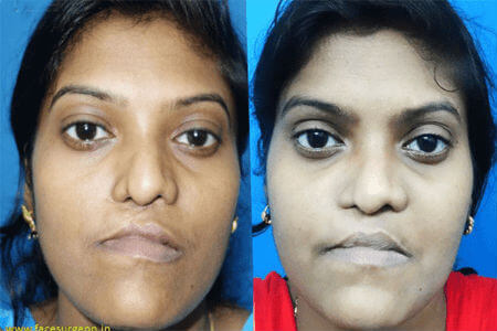 Jaw surgery at Richardsons Hospital India