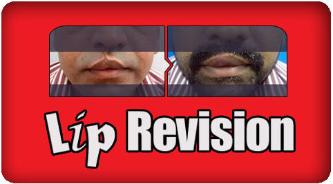 Lip revision surgery in Nagercoil