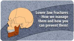 Lower Jaw Fractures surgery in Tamil Nadu
