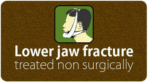 Lower jaw fracture treated non surgically