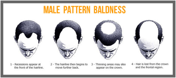 Male Baldness Treatment in India