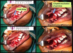 Maxillary Cyst Surgery in India