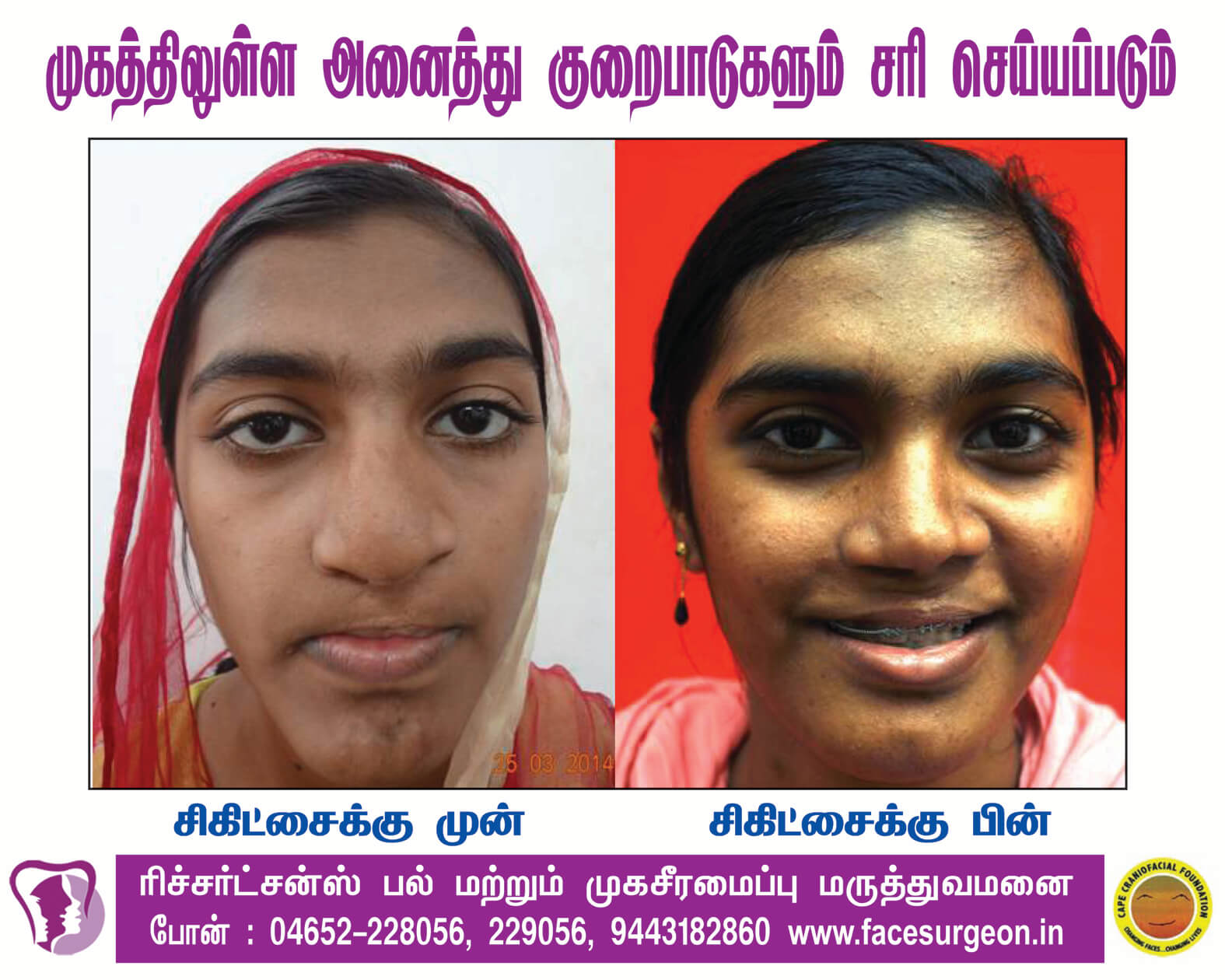Maxillary Distraction Surgery in Nagercoil