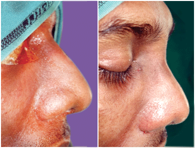 Nose surgery in Nagercoil