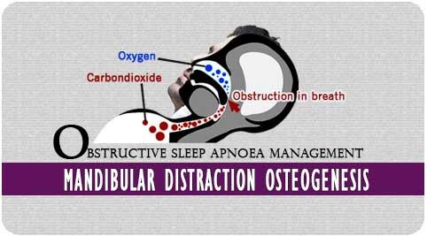 Obstructive sleep apnoea in Richardson dental and craniofacial Hospital
