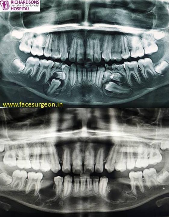 Odontogenic cyst removal