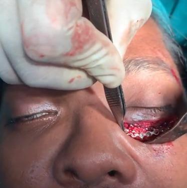 Orbital floor fracture surgery in India