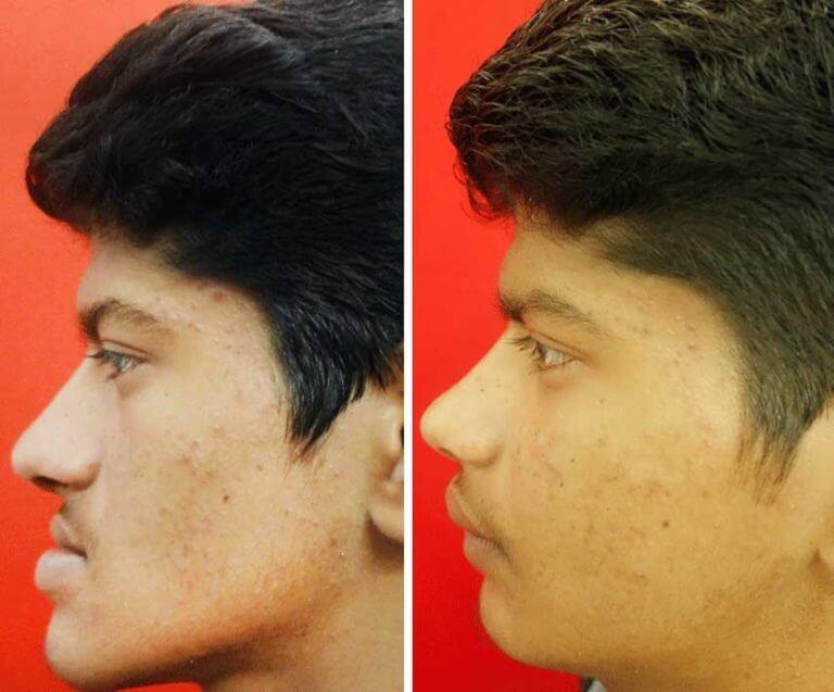 jaw surgery in tamil nadu