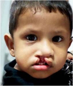 Palate repair surgery in India