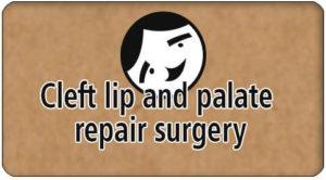 Palate repair surgery in Tamil Nadu