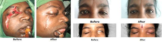 Periocular-Surgery