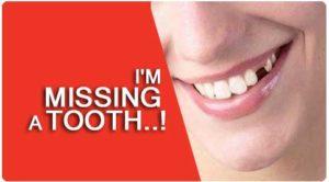 Removable Partial Denture Treatment