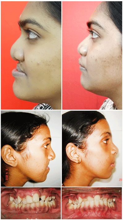 Retrognathic maxilla surgery