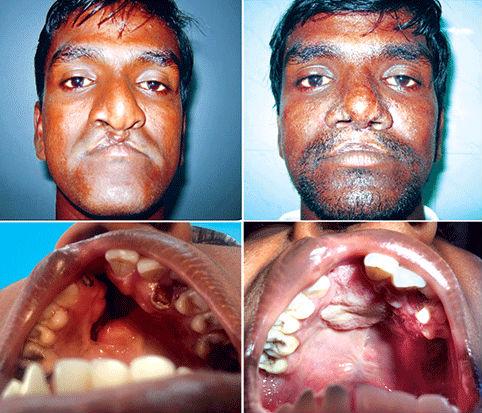 facial scar redo surgery