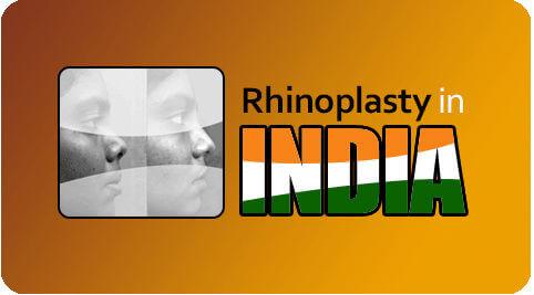 Rhinoplasty-In-India