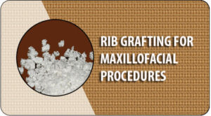 Rib grafting in India