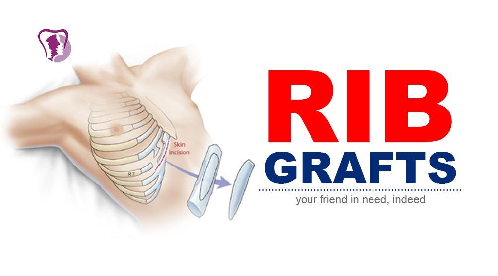 Rib grafts surgery in Richardson Hospital