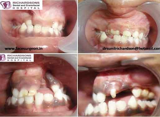 Dental Alveoloplasty hospital in India