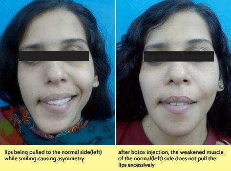 Treatment for facial asymmetry correction in India