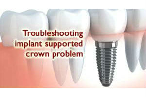 Troubleshooting Implant Supported Crown Problem treatment in India