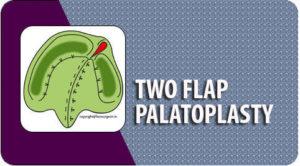 Two flap palatoplasty Surgery in Tamil Nadu