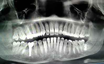 wisdom teeth removal in kanyakumari