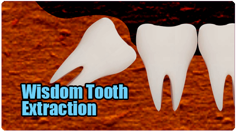 Wisdom Tooth Extraction in Tamil Nadu