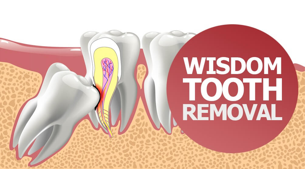 Wisdom Tooth Removal