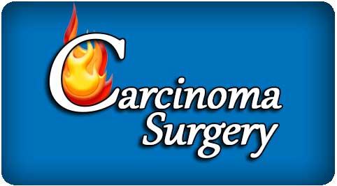 carcinoma surgeon in India